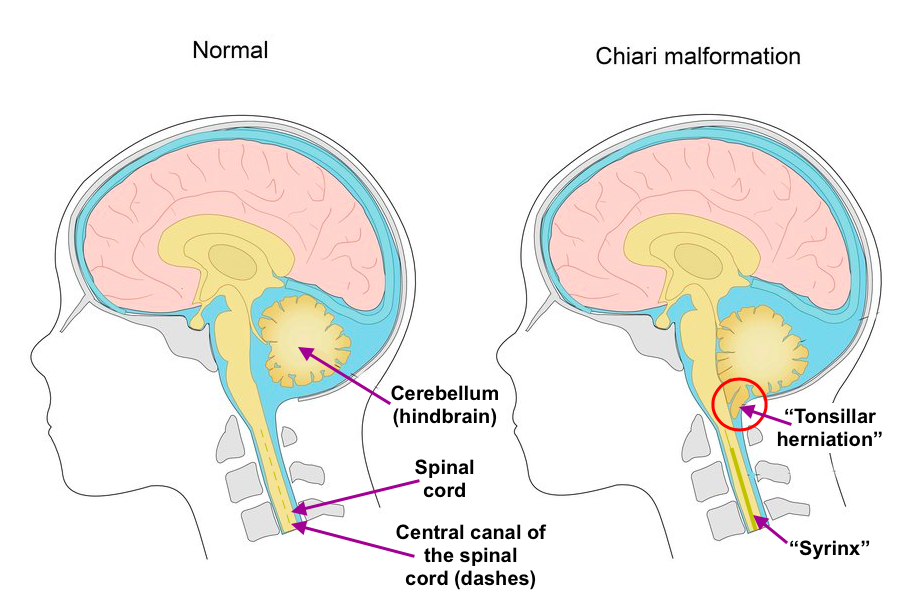 chiari malformation intouch chiropractic san diego ca