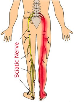 sciatica intouch chiropractic low back pain nucca upper cervical care spinal decompression san diego