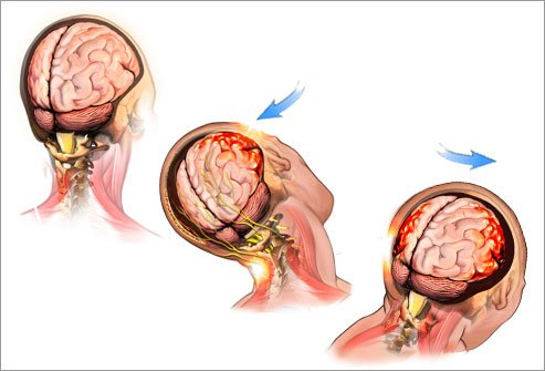 Concussion Treatment in San Diego