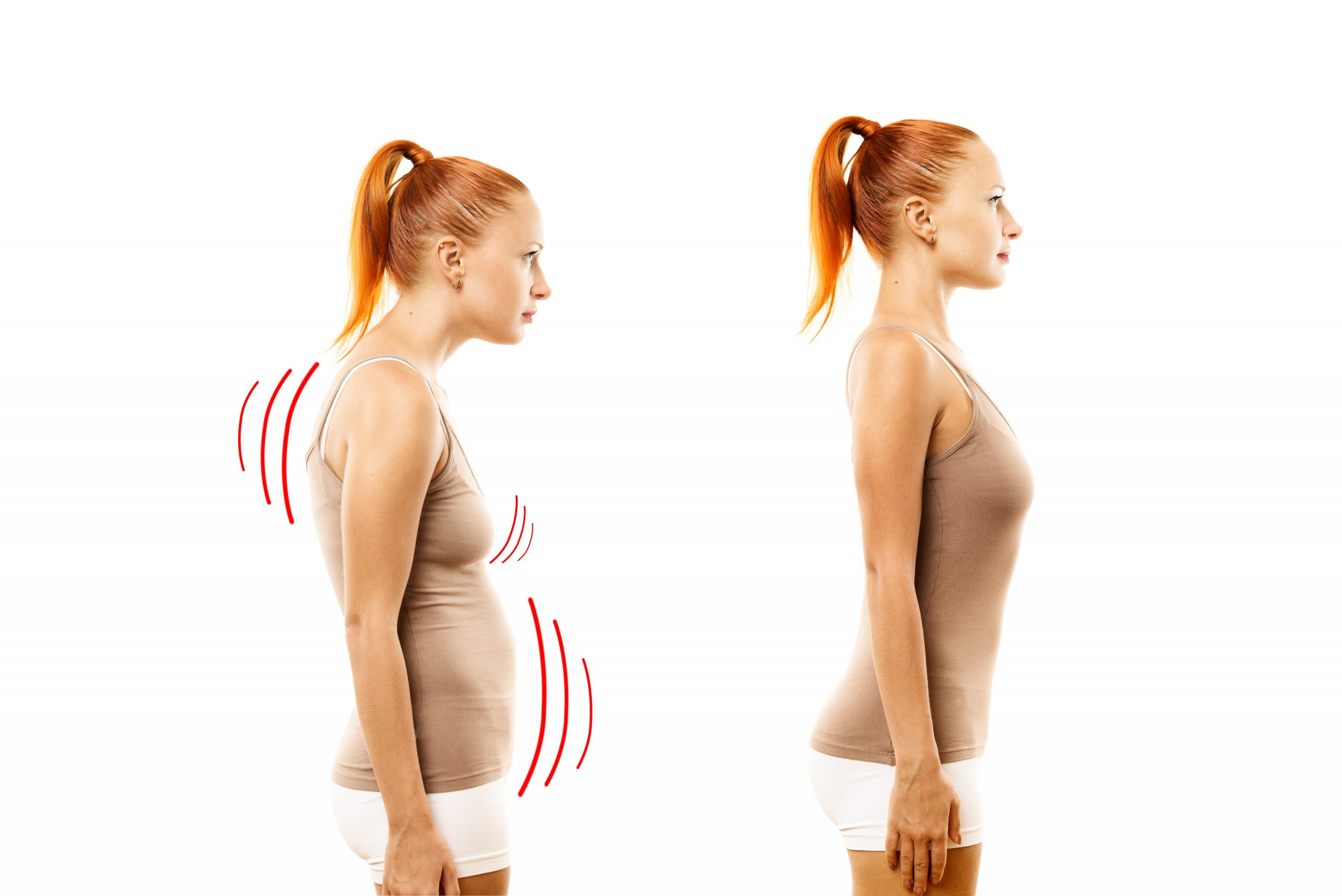 correct posture san diego intouch chiropractic nucca upper cervical care spinal decompression