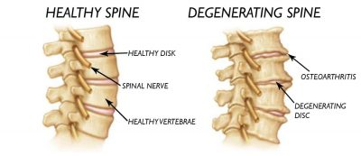 degenerative-disc-disease-intouch chiropractic nucca upper cervical care spinal decompression san diego