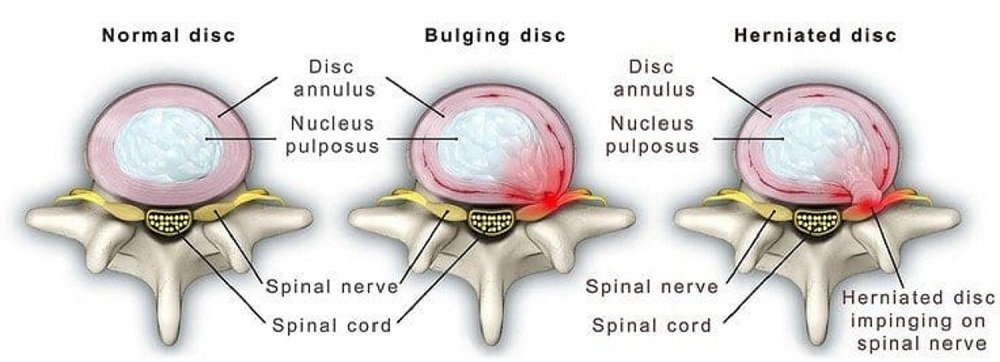 herniated-bulging-discs intouch chiropractic nucca san diego spinal decompression upper cervical care