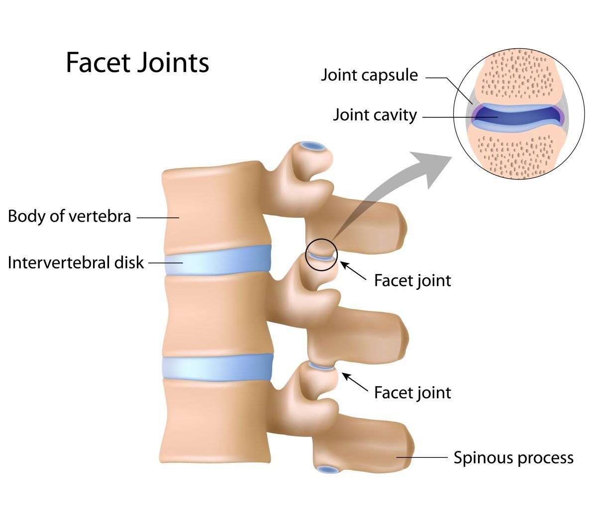 facet syndrome intouch chiropractic san diego neck pain low back pain surgical decompression