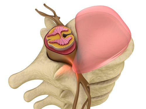 bulging disc intouch chiropractic san diego nucca upper cervical care disc herniation spinal decompression
