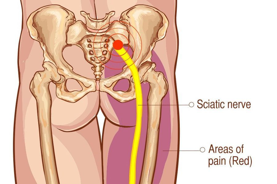 Sciatica low back pain intouch chiropractic san diego nucca nonsurgical spinal decompression
