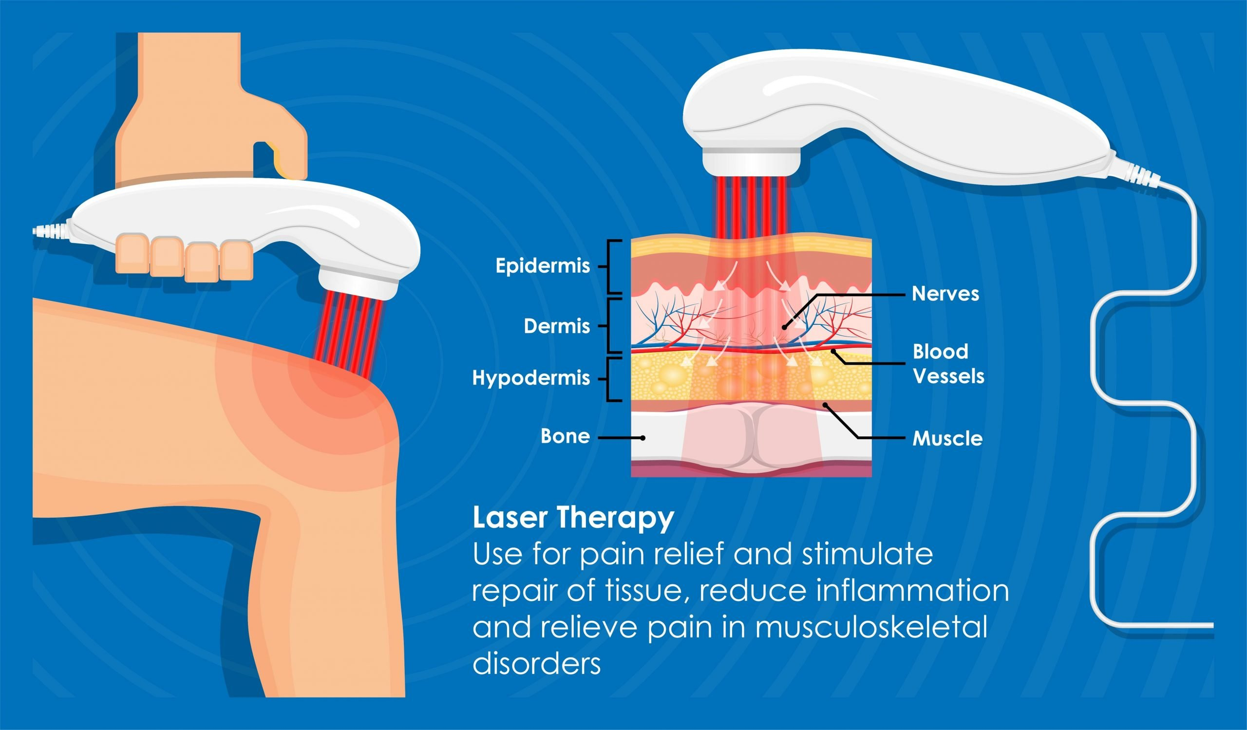 laser therapy intouch chiropractic san diego ca neck pain low back pain knee pain neuropathy
